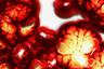 13509 Мексиканский студент изобрел распознающий рак бюстгальтер