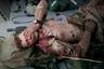 13449 Смертник подорвался недалеко от посольства США в Кабуле