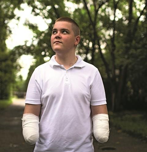 Лишившийся рук подросток из Барнаула помог выжить 48 детям