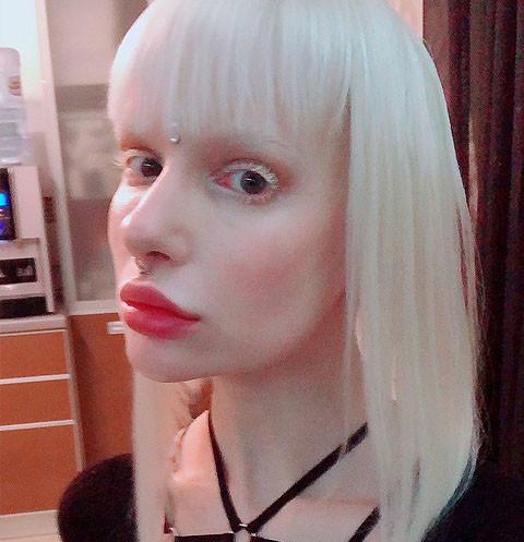 Участница «Холостяка» Алиса Лисс заговорила о тяжелой борьбе с раком