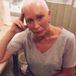 36198 Татьяна Васильева вновь доверила свое тело пластическому хирургу
