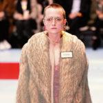 40167 Студентка стала моделью Gucci после удаления опухоли мозга
