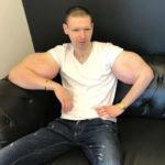 Кирилл Терешин об удалении «рук-базук»: «Это трансформация из фрика в человека»