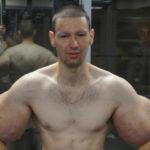 48943 «Руки-базуки» Кирилл Терешин показал, как выглядит после операции