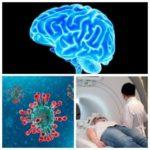 55712 Медики из Италии обнаружили изменения в головном мозге больного COVID-19