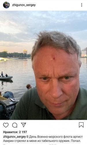 Травма Сергея, полученная на съемках «Горюнова»