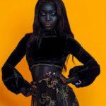 64886 Девушка раньше очень комплексовала из-за своего цвета кожи, а сейчас она популярная модель