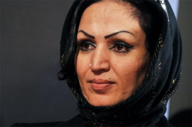 67289 На афганскую актрису и правозащитницу Сабу Сахар напали в Кабуле. Она получила огнестрельное ранение