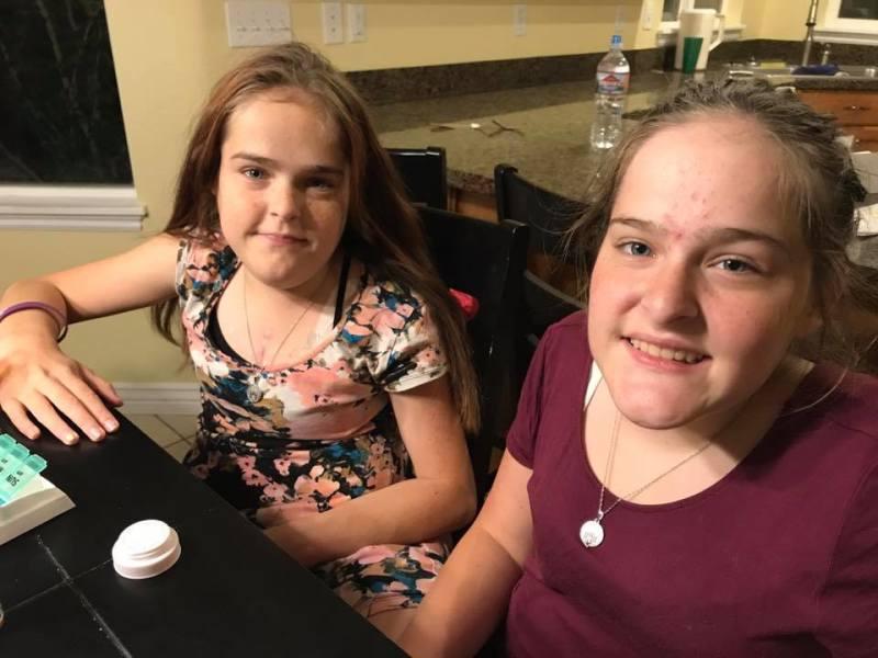 Этих сиамских близнецов разделили в 4 годика, сейчас им по 18 лет. Как они теперь живут?