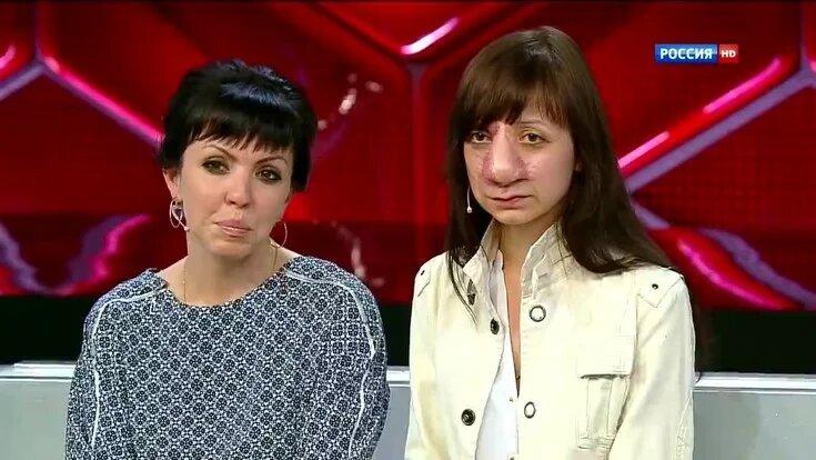 Как сейчас выглядит Яна Муратова, которая пережила 19 операций на носу