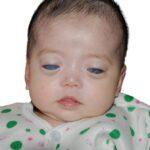 94651 Как сложилась жизнь девочки с «серебряными глазами», которую никто не хотел удочерять